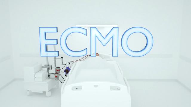 葉克膜(ECMO)真的是救命神器?簡單讓你了解葉克膜到底是什麼!